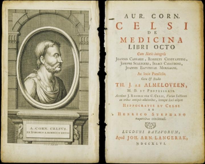 上图:塞尔苏斯(Aulus Cornelius Celsus,主前25-主后50年)编纂的百科全书《医术 De Medicina》。在这本书中提到希腊文称为elephantiasis graecorum的疾病,症状与现代的麻风病相似。但主前3-2世纪的希腊文七十士译本却把「大麻风 צָרַעַת」译为Λέπρα(lepra),意思是「使皮肤有鳞的病」。主后5世纪耶柔米(Jerome)在翻译拉丁文武加大译本时,也没有使用学名elephantiasis graecorum,而是使用lepra的音译,表明他并不认为lepra就是麻风病,而只是一种恶性皮肤病。从lepra转变来的英文leprosy,后来被用来称呼「麻风病 Hansen's Disease」。